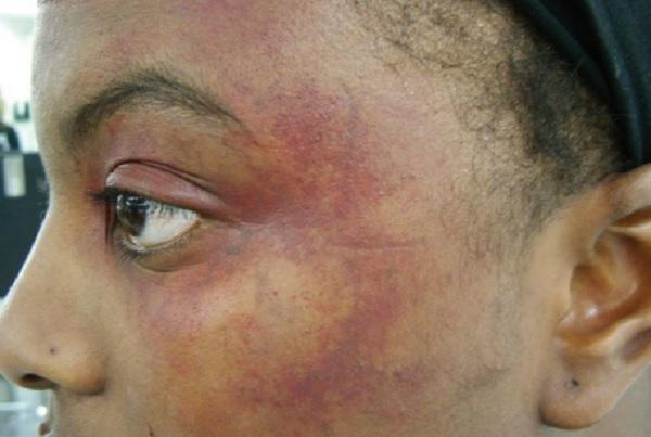 treat bruises at home